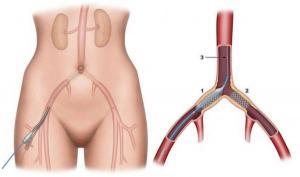 La varicosité des veines après lopération